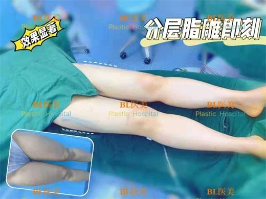 微信图片_2020111614400020.jpg